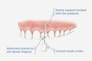 Are Dental Implants Safe 2